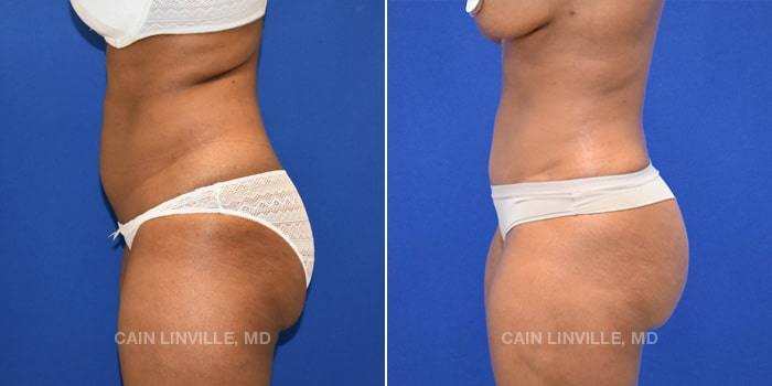 Bodytite Before And After Patient 1C