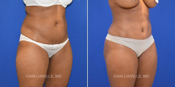 Bodytite Before And After Patient 1D
