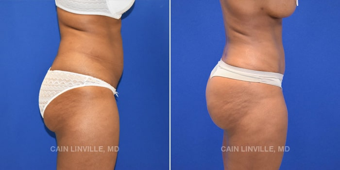 Bodytite Before And After Patient 1E