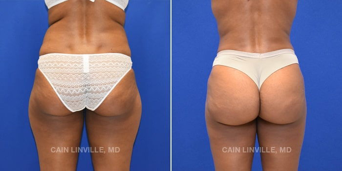 Bodytite Before And After Patient 1F