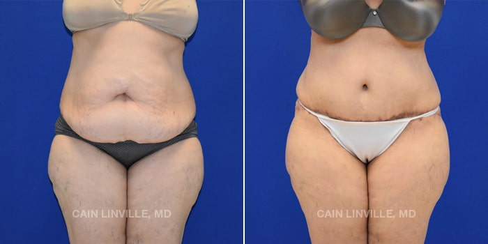 Lipo Tummy Tuck Before And After Patient 13A