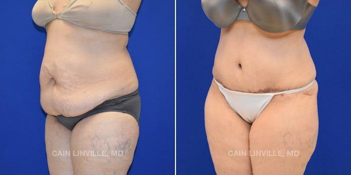 Lipo Tummy Tuck Before And After Patient 13B