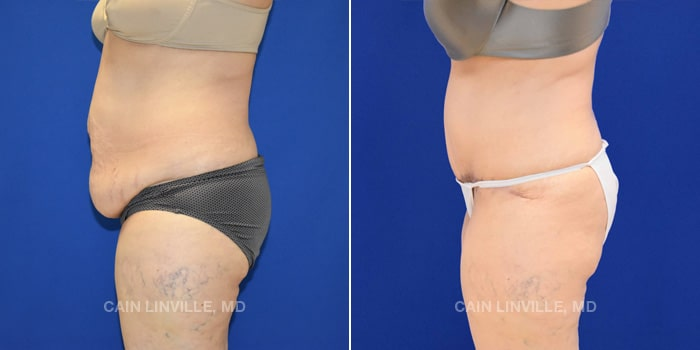 Lipo Tummy Tuck Before And After Patient 13C