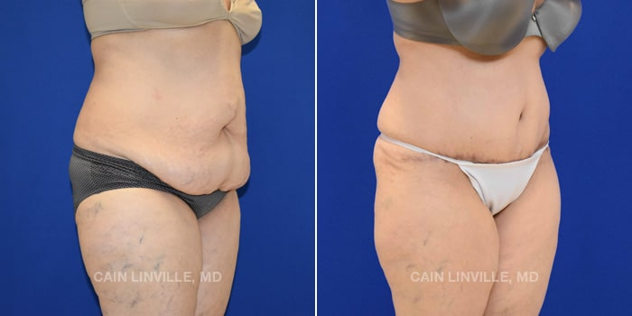 Lipo Tummy Tuck Before And After Patient 13D