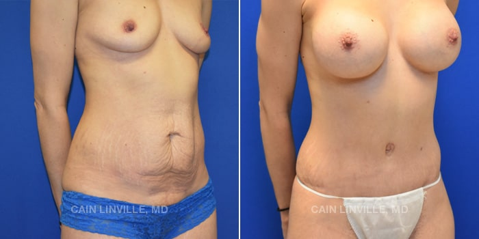 Mommy Makeover Before And After Patient 5D