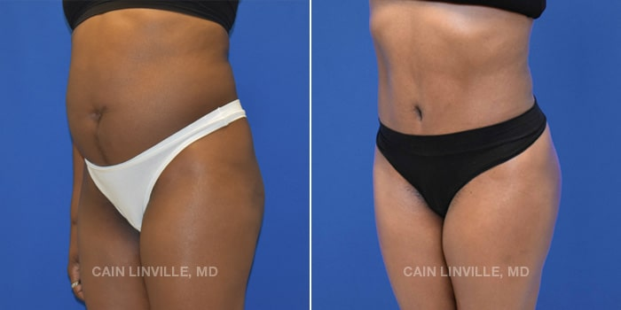 Lipo Tummy Tuck Before And After Patient 11A