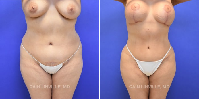 Lipo Tummy Tuck Before And After Patient 10A