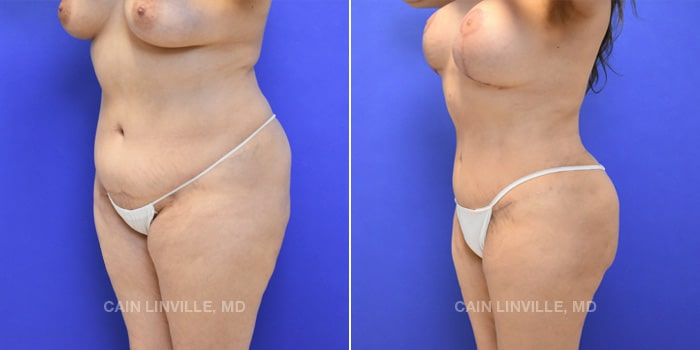 Lipo Tummy Tuck Before And After Patient 10B