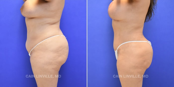 Lipo Tummy Tuck Before And After Patient 10C