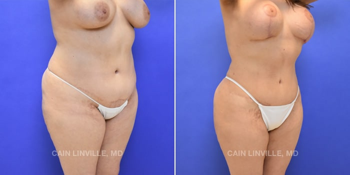 Lipo Tummy Tuck Before And After Patient 10D
