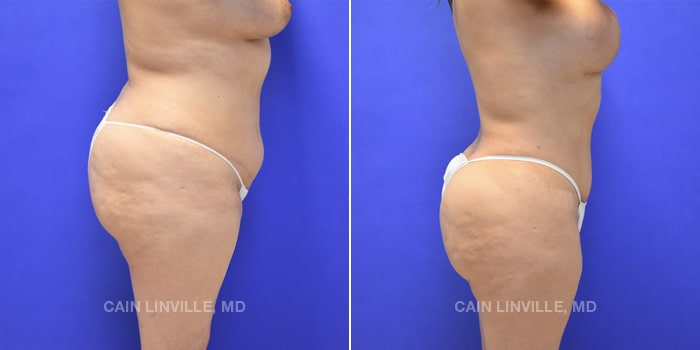 Lipo Tummy Tuck Before And After Patient 10E