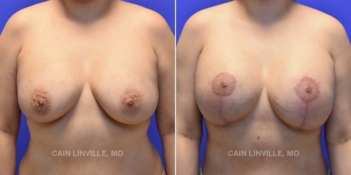 Breast Revision Before And After Patient 1A