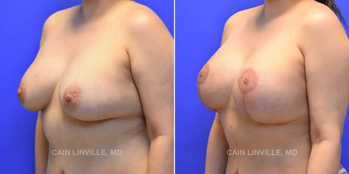 Breast Revision Before And After Patient 1B