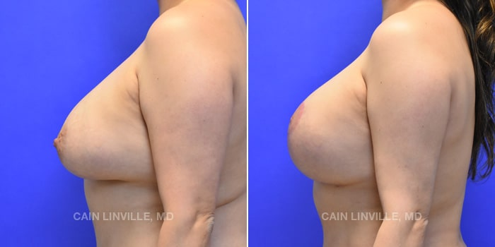 Breast Revision Before And After Patient 1C