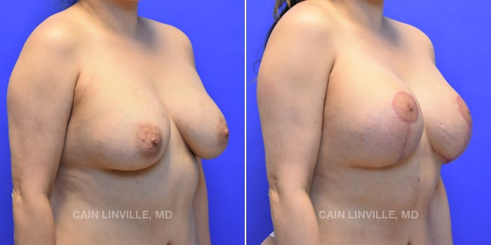 Breast Revision Before And After Patient 1D