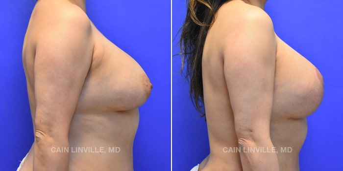 Breast Revision Before And After Patient 1E