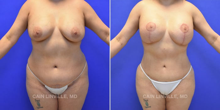 Mommy Makeover Before And After Patient 6A