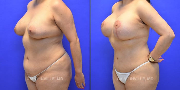 Mommy Makeover Before And After Patient 6B