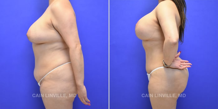 Mommy Makeover Before And After Patient 6C