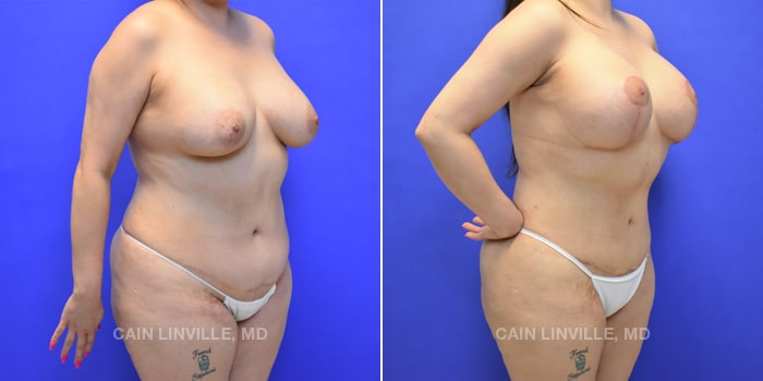 Mommy Makeover Before And After Patient 6D