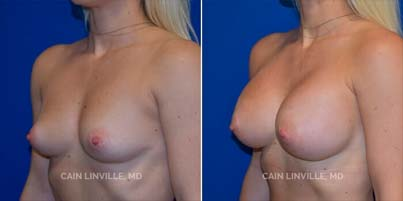 breast augmentation Patient before and after picture 3/4 View left side