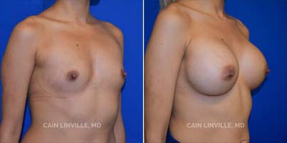 breast augmentation Patient before and after picture 3/4 View right side