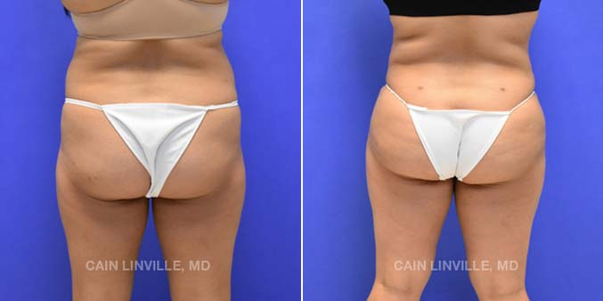Brazilian Butt Lift Before and After Photos in Houston by Dr Cain Linville
