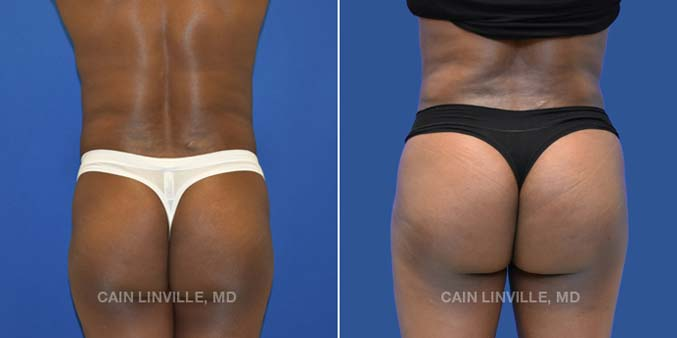 Brazilian Butt Lift Patient #2 Before and After Photos in Houston by Dr Cain Linville
