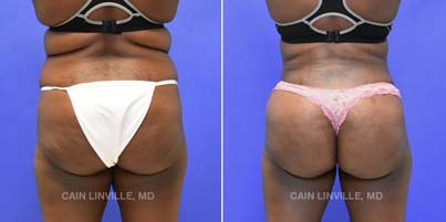 Brazilian Butt Lift - Patient 01 before and after picture front view