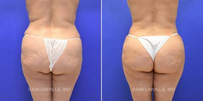 Brazilian Butt Lift - Patient 02 before and after picture front view