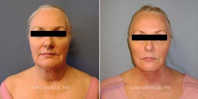 Patient before and after picture front view