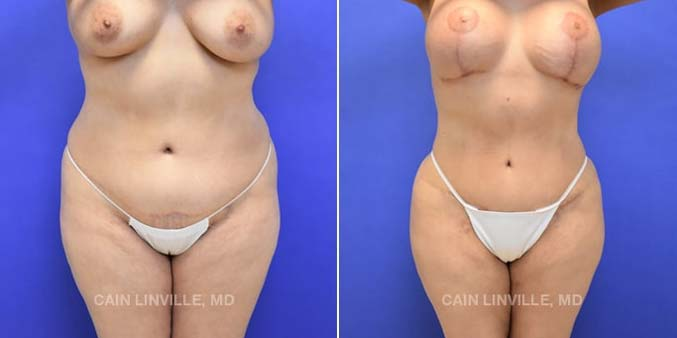 Liposuction Before and After Houston Texas Linville Plastic Surgery