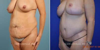 Liposuction - Patient 02 before and after picture 3/4 left view