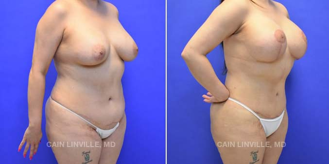 Mommy Makeover Houston Texas Plastic Surgery Before and After Photo Linville