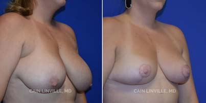 Breast implant revision Patient before and after picture 3/4 right side View