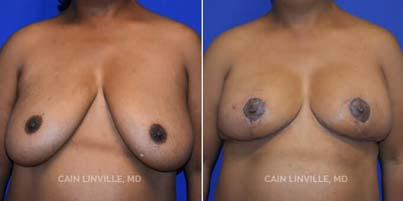 Breast Reduction Patient before and after picture front View
