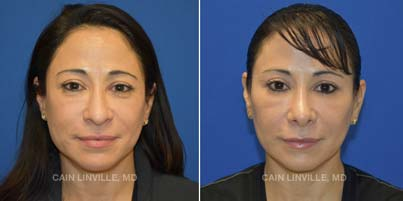 Rhinoplasty Patients before and after picture front view
