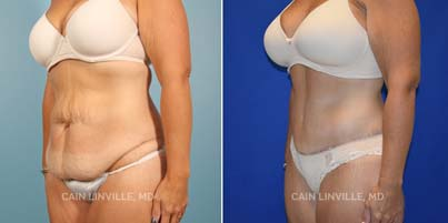 Full Tummy Tuck Houston before and after picture 3/4 View left side