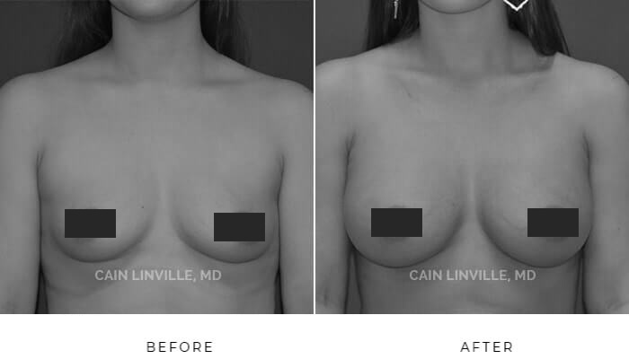 Breast augmentation before and after patient picture
