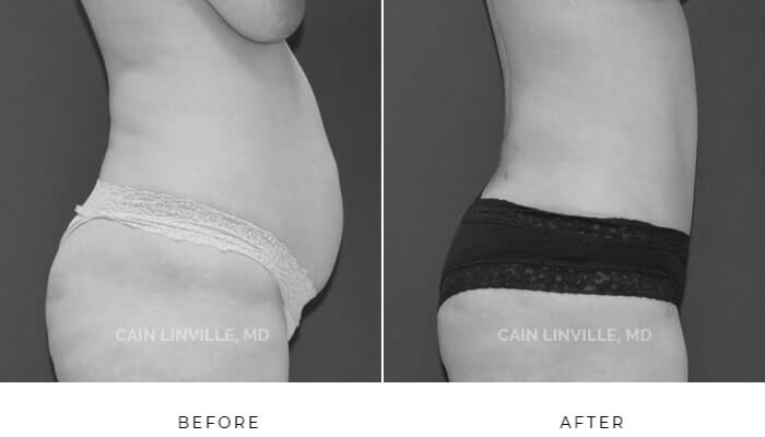 Tummy-tuck before and after patient picture