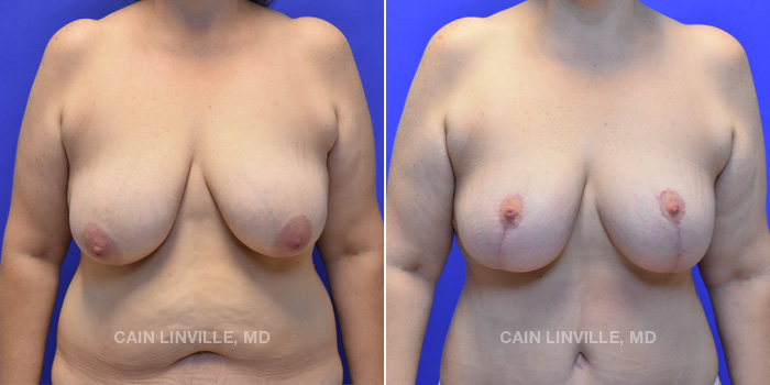 Breast Lift Before And After Patient 5A