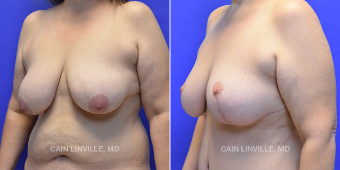 Breast Lift Before And After Patient 5B
