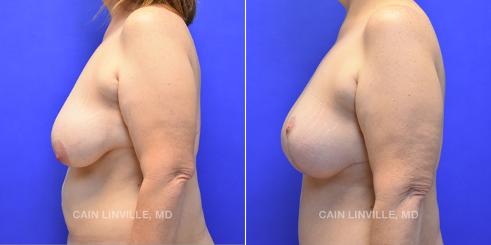 Breast Lift Before And After Patient 5C