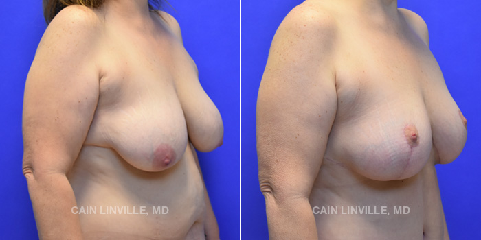 Breast Lift Before And After Patient 5D
