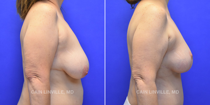 Breast Lift Before And After Patient 5E