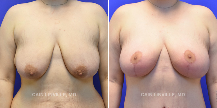 Breast Lift Before And After Patient 4A