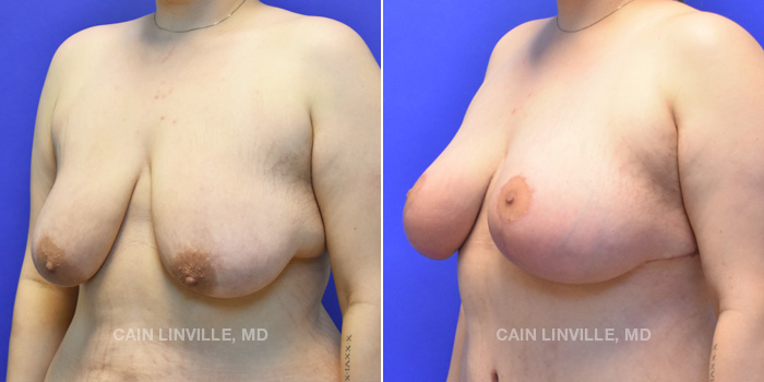 Breast Lift Before And After Patient 4B