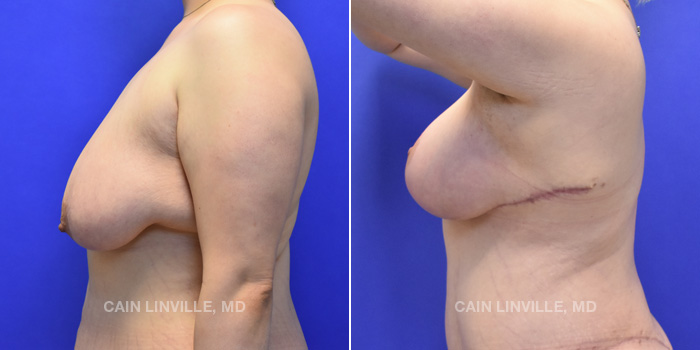 Breast Lift Before And After Patient 4C
