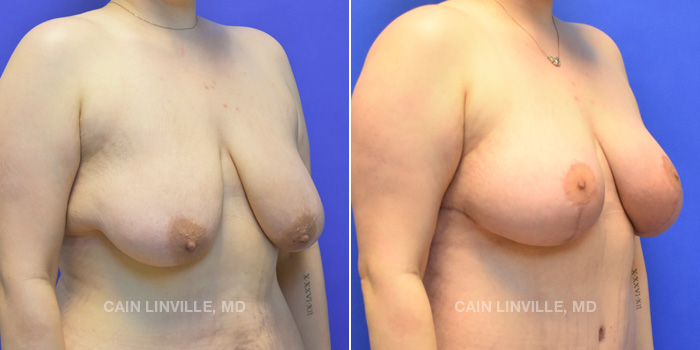 Breast Lift Before And After Patient 4D