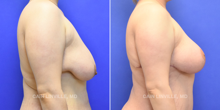 Breast Lift Before And After Patient 4E